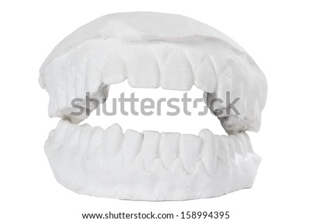 Dental gypsum model mould of teeth in plaster isolated on white background - stock photo