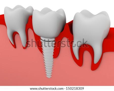 Dental implant - stock photo