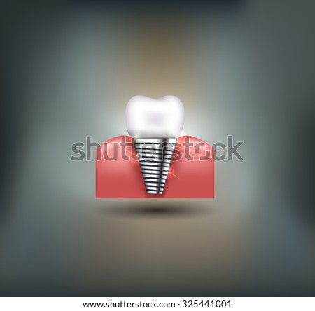 Dental implant beautiful bright illustration - stock photo