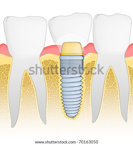Dental Implant detailed view. Illustration. - stock photo