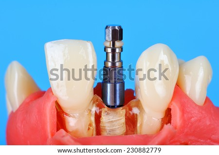 Dental implant implanted in jaw bone on blue background - stock photo