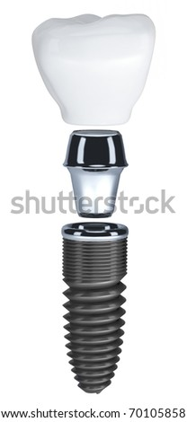Dental implant isolated on white - stock photo