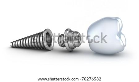 Dental implant lying on its side isolated on white - stock photo