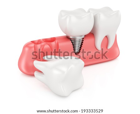 Dental implantation concept isolated on white background. 3d rendering illustration - stock photo