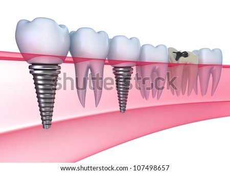 Dental implants in the gum - Isolated on white