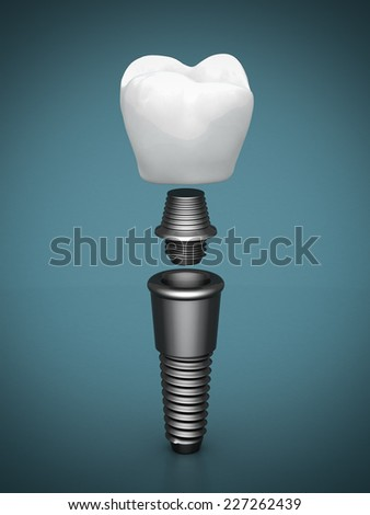 Dental implants on a beautiful blue background - stock photo