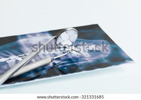 dental instruments on x ray - stock photo