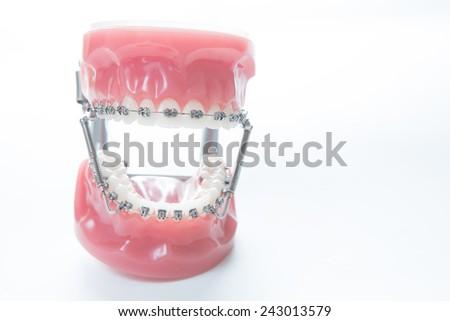 Dental lower jaw bracket braces model on white. Selective focus. - stock photo