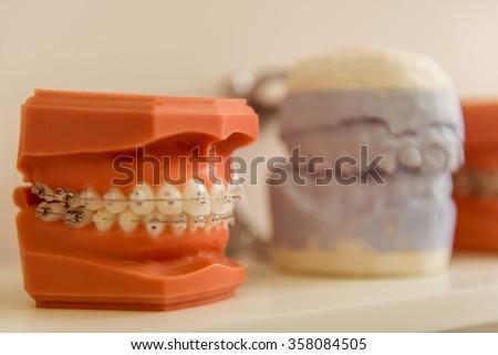 Dental model teeth on dentistry office background - stock photo
