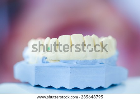 Dental plaster mold with open mouth picture in the background - stock photo