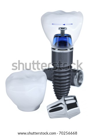 Dental prosthesis construction isolated on white - stock photo