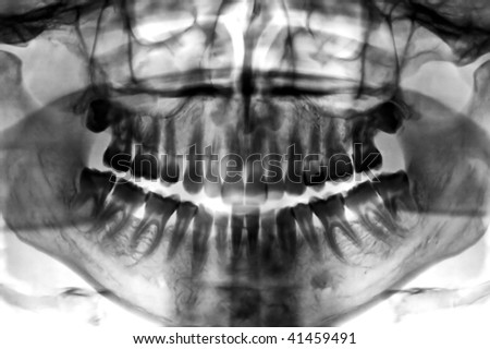 Dental scan x-ray negative of a 35 year old man. - stock photo