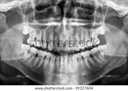 Dental scan x-ray of a 35 year old man. - stock photo