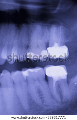Dental teeth fillings, gum disease gingivitis dentists medical tooth x-ray test scan image. - stock photo