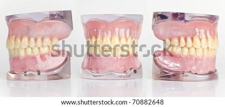 Dental Teeth Model - stock photo