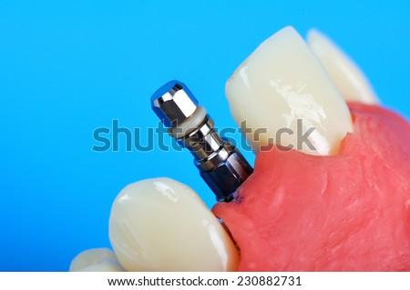 Dental titanium implant implanted in jaw bone - stock photo