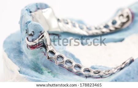 Dental wire bending - stock photo