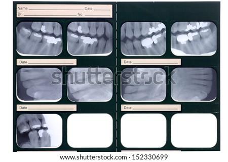 Dental X-ray - stock photo