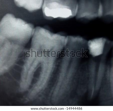 dental x-ray detail - stock photo