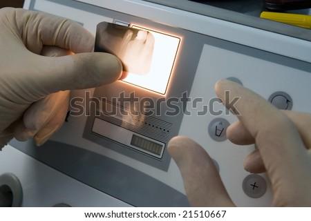 dental x-ray investigation - stock photo