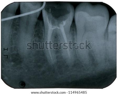 Dental X-Ray, macro - stock photo