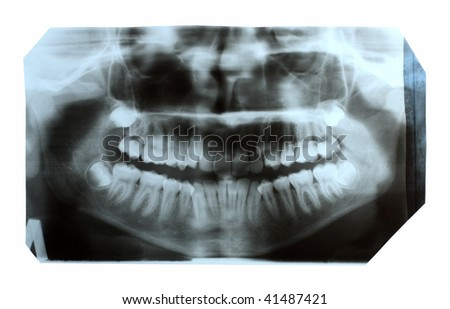 dental x-ray picture of jaw with teeth - stock photo