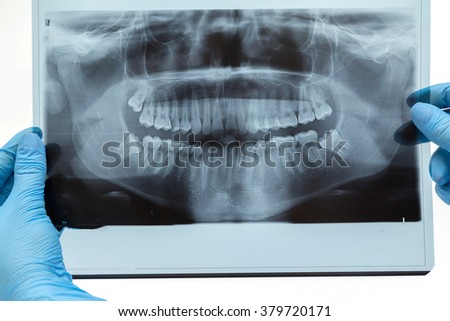 Dental X-ray. Radiography on white background - stock photo