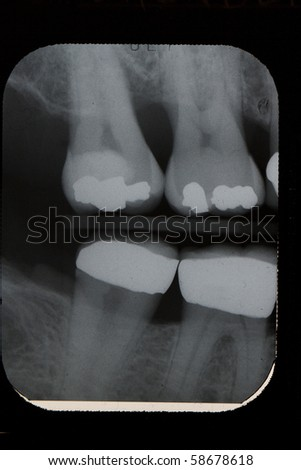 Dental X-ray, Vertical Bitewings, Right Molar