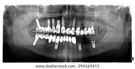 Dental x-ray with periodontitis problems, decayed teeth,implant - stock photo