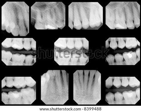 dental x-rays, full set - normal adult, 1 filling - stock photo