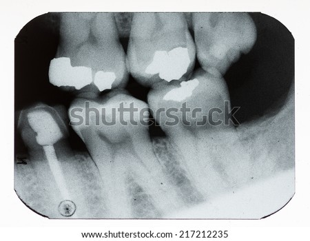 dental xray showing fillings and missing teeth - stock photo