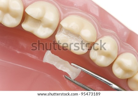 Dentist - stock photo