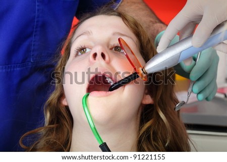 Dentist and assistant using dental UV curing light