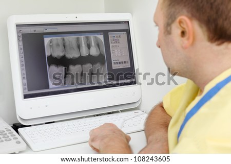 Dentist carefully looks at teeth X-rays at computer monitor in dental clinic. Focus on monitor. - stock photo