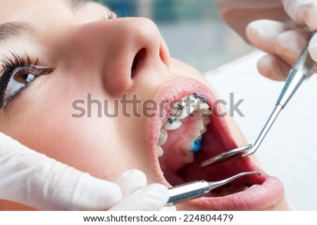 Dentist hands working on young teen patient with dental braces. - stock photo