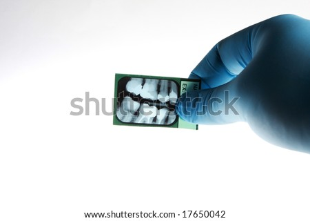 Dentist looking at xray of patients teeth - stock photo