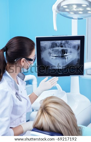 Dentist shows a patient x-ray - stock photo