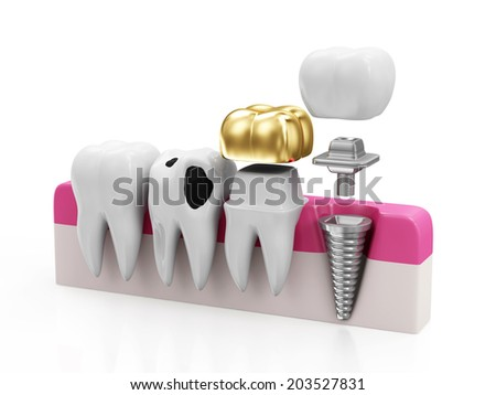 Dentistry Concept. Health Tooth, Teeth with Caries, Golden Dental Crown and Implant isolated on white background - stock photo