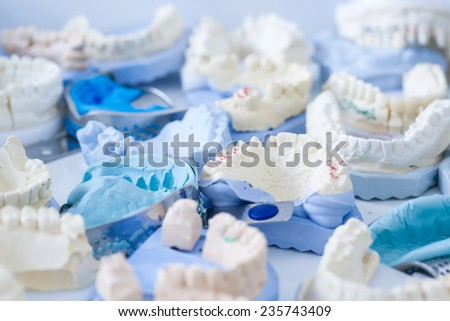 Denture and implant production: variety of dental plaster molds and imprints with metal stock trays - stock photo