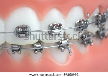 Denture with braces - stock photo