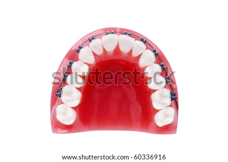 Denture with braces , upper jaw , isolated on white - stock photo