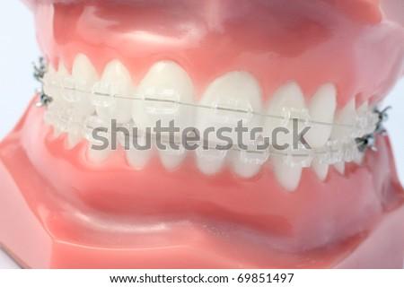 Denture with brackets - stock photo