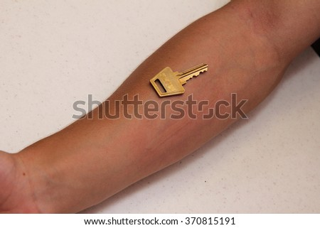 Dermatographic Pressure Hives with a positive key test - stock photo