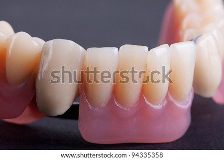 detail dental wax model over black background - stock photo