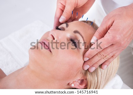 Detail Of A Woman  Receiving An Acupuncture Needle Therapy - stock photo