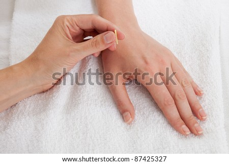 Detail of acupuncturist placing a needle in the Large Intestine 4 (LI4) point - stock photo