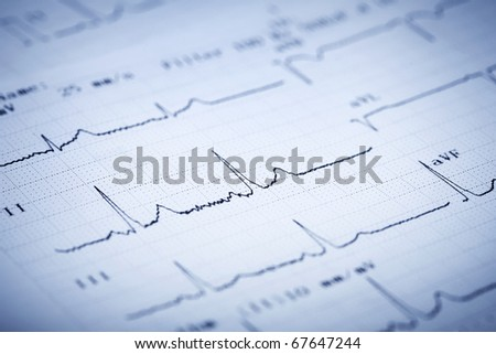 Detail of an electrocardiogram - stock photo