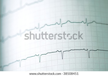 Detail of an electrocardiogram in paper - stock photo