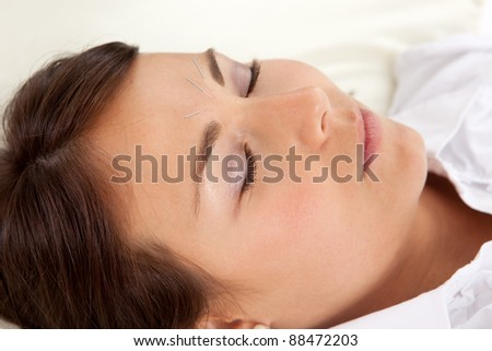 Detail of woman with acupuncture needles in face - stock photo