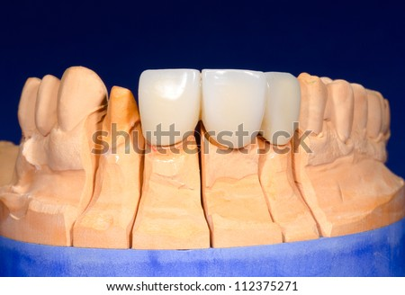 detail plaster model with dental bridge - stock photo